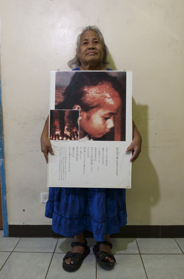 Nerje Joseph holds a photograph her as a young girl, taken in 1954 when radioactive ash from Bikini fell on her home atoll of Rongelap.